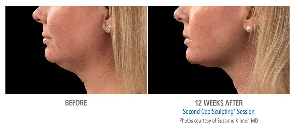 CoolSculpting Double Chin Fat Reduction