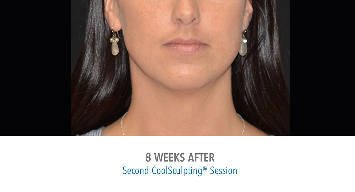 CoolSculpting female jawline after treatment