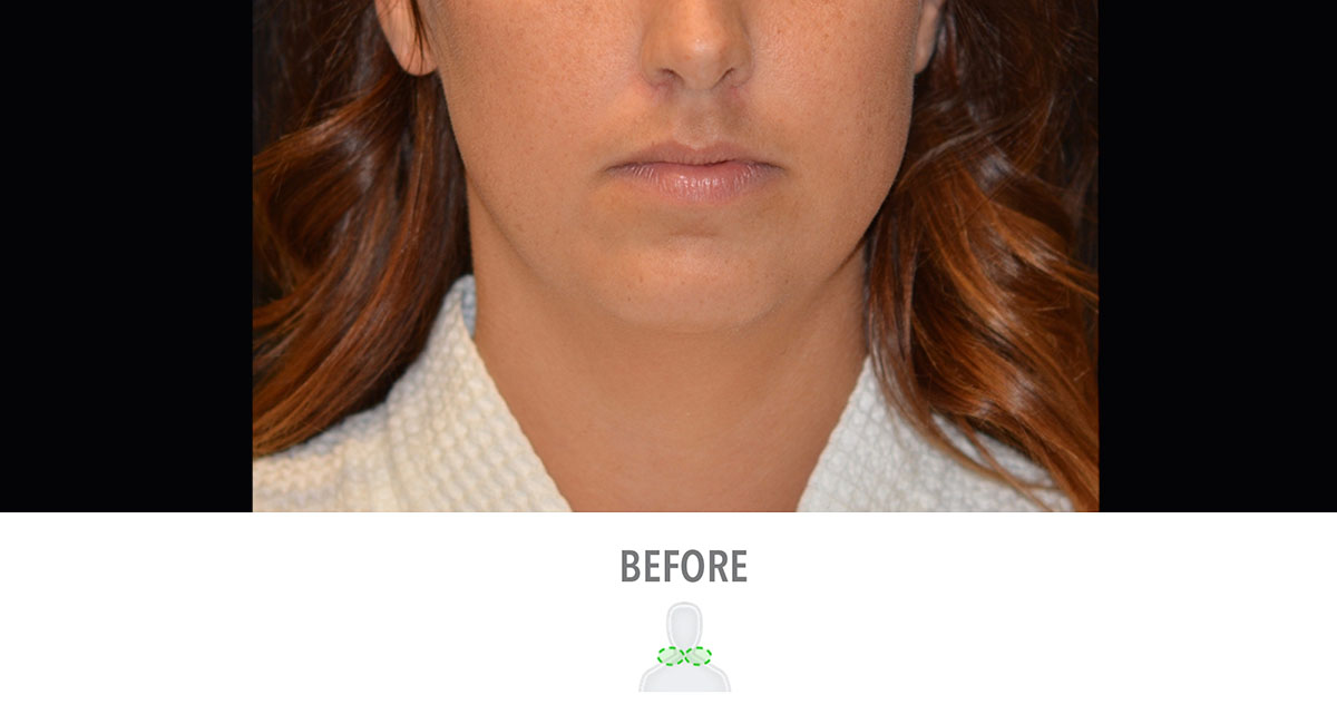 CoolSculpting female jawline before treatment