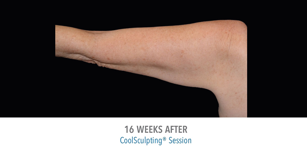 CoolSculpting female upper arms after treatment