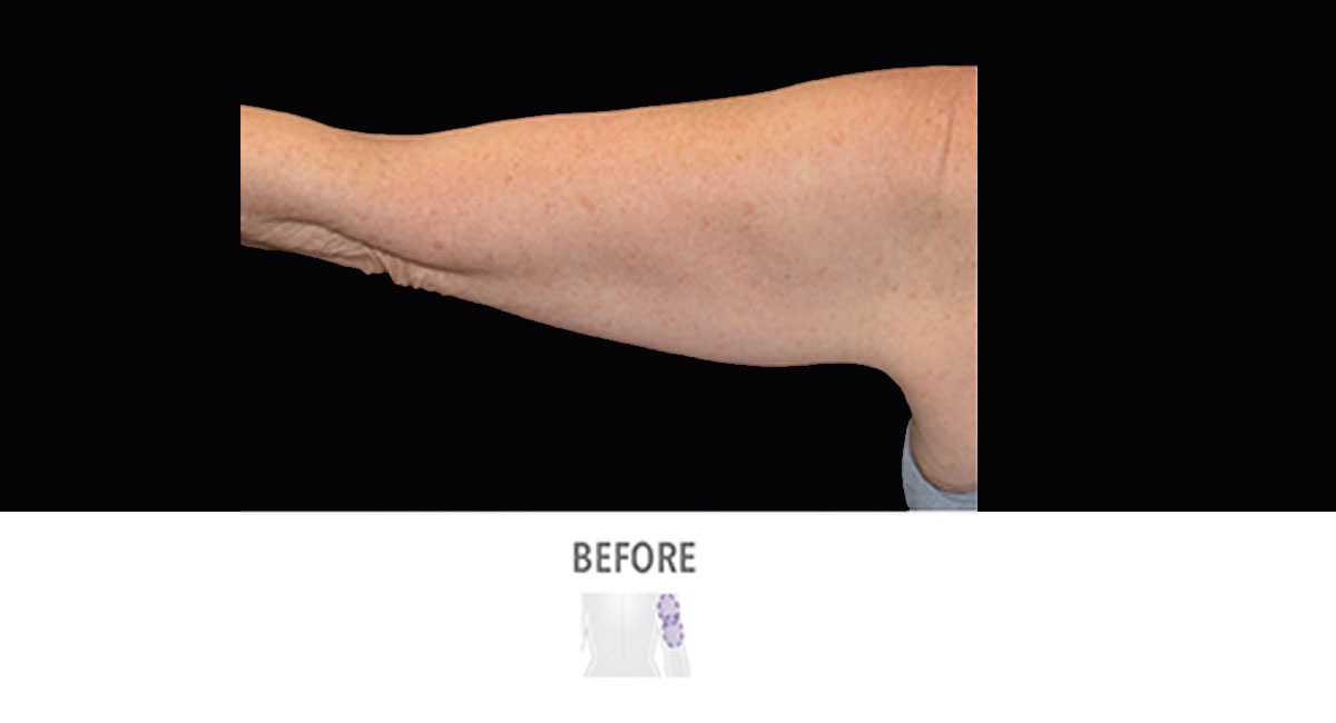 CoolSculpting female upper arms before treatment