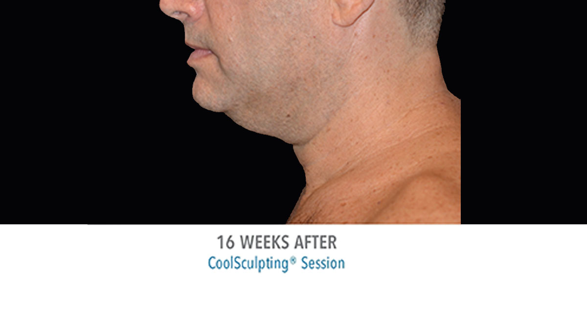 CoolSculpting male double chin after treatment