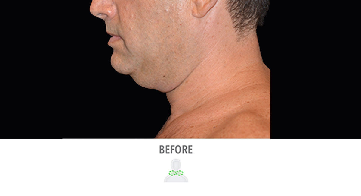 CoolSculpting male double chin before treatment
