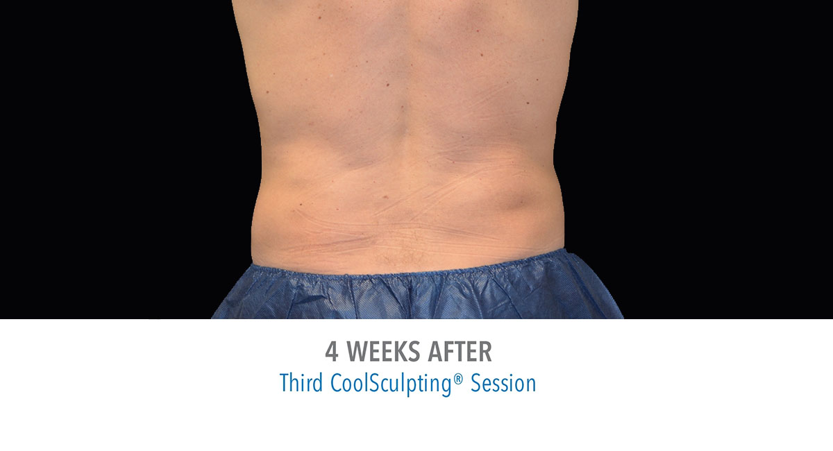 CoolSculpting male love handles after treatment
