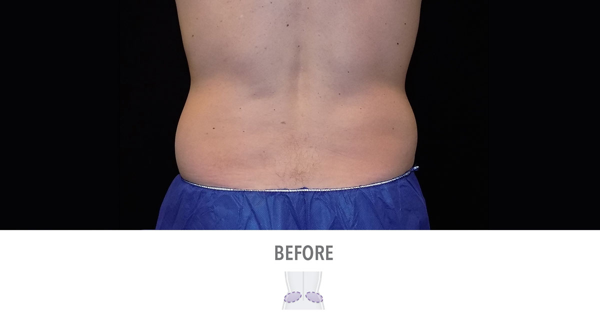 CoolSculpting male love handles before treatment