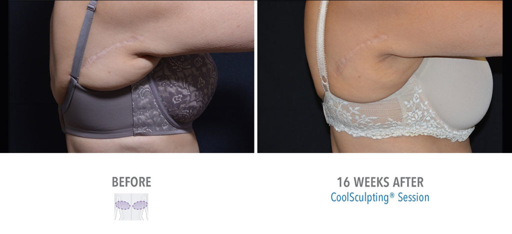 CoolSculpting braline before and after