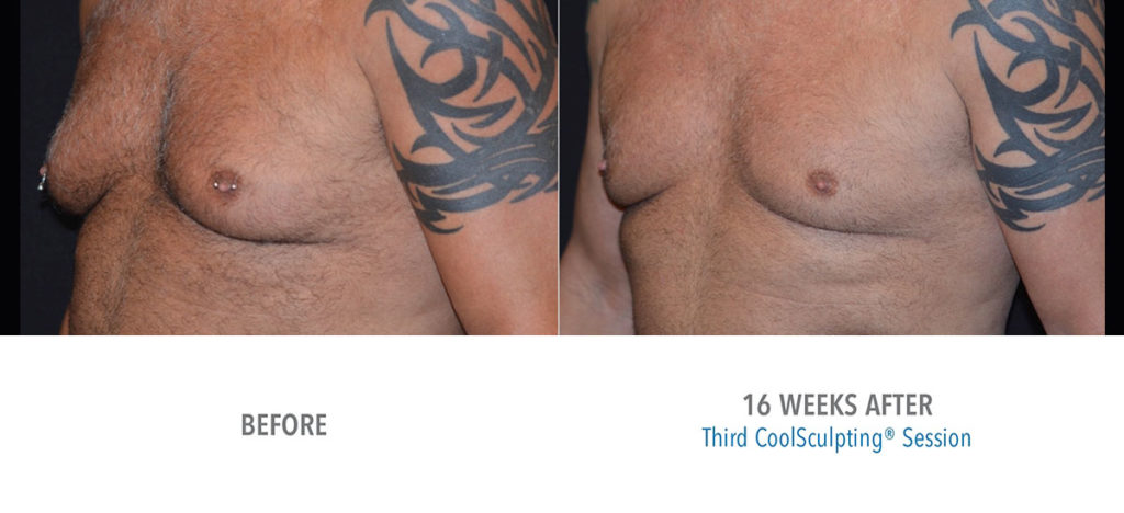 CoolSculpting male chest before and after