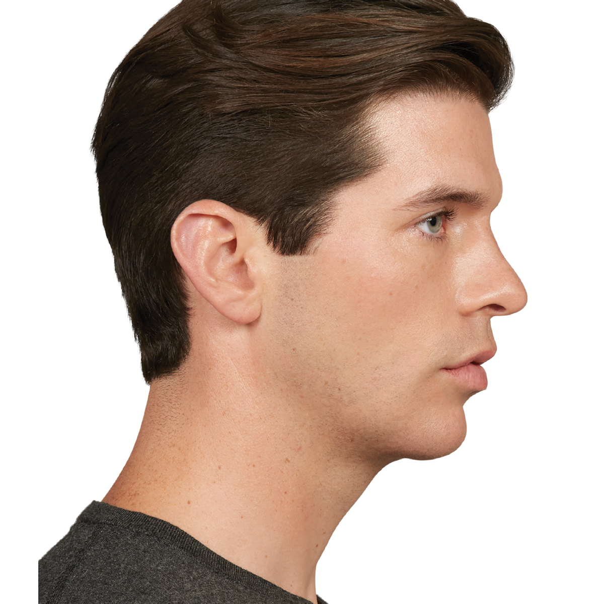 Male Chin and Jawline After
