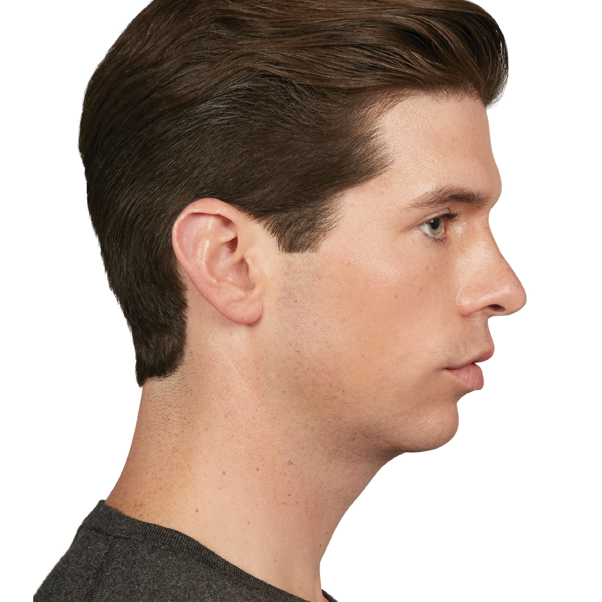Male Chin and Jawline Before